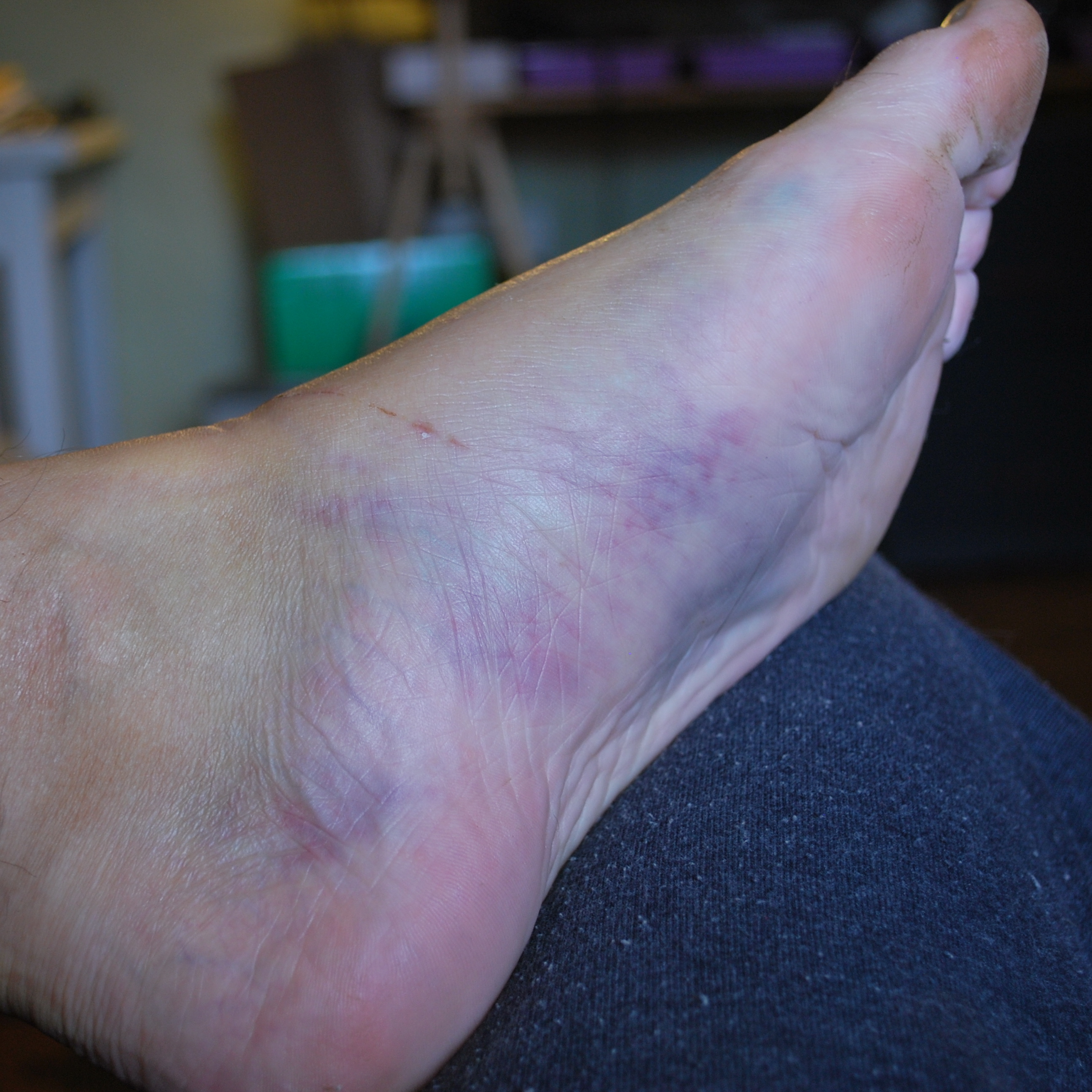 Broke Your Fourth Metatarsal? My First Six Days
