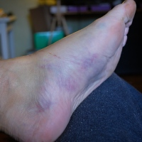 Broke Your Fourth Metatarsal? My First Six Days...
